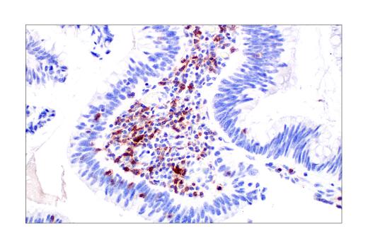 ヒト結腸がんにおけるTIGIT陽性細胞のIHC